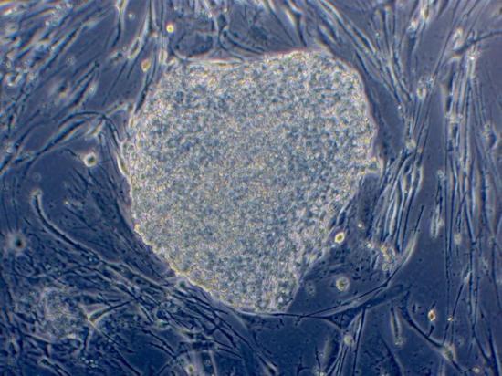 这之中的一些iPS细胞已经被诱导成为配子的早期前体。接下来的步骤将会更困难。(图片由加州大学洛杉矶分校广泛干细胞研究中心提供)